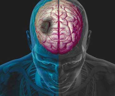 طب سوزني برای سکته مغزى